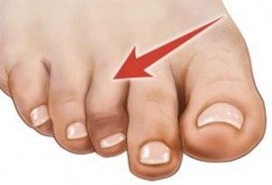 انگشت چکشی: علت و درمان