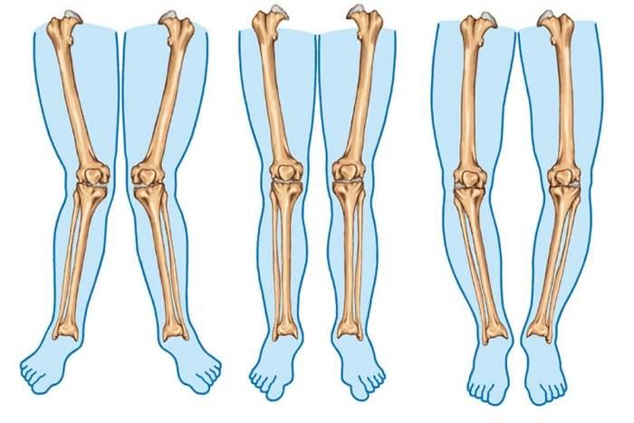 تشخیص علائم پای پرانتزی