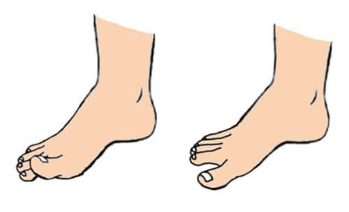 تمرین یوگای انگشتان پا برای اصلاح کف پای صاف