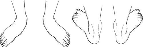 درمان صافی کف پا در کودکان و بزرگسالان با فیزیوتراپی و ورزش