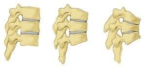 پوکی استخوان: درمان، علائم و پیشگیری