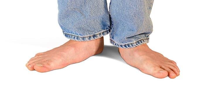 درمان کف پای صاف