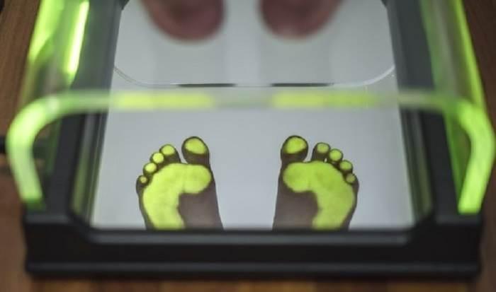 روش اسکن کف پا برای ساخت کفی و ارتزهای طبی