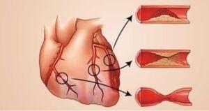 مشکلات قلبی و درد بین دو کتف