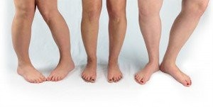 چرخش پنجه پا به داخل: درمان و علت