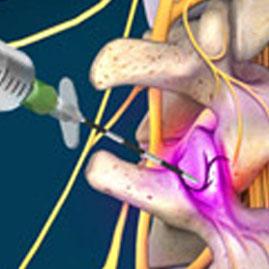 بلوک عصبی با امواج رادیوفرکوئنسی (آر اف، RF) در درمان درد مزمن کمر و گردن
